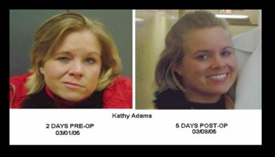 Kathy before and after MVD