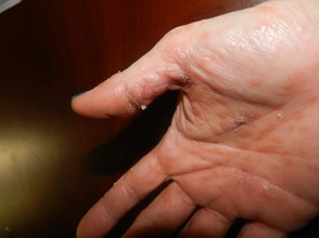 My Hand with Psoriasis