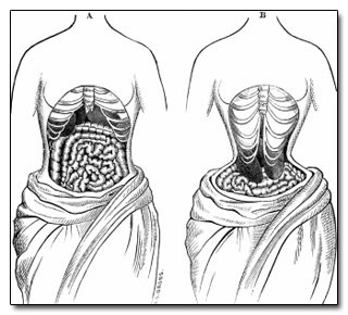 Image:  Internal organs while wearing a corset.