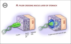 H. Pylori Crossing Mucus Membrane in Stomach Lining