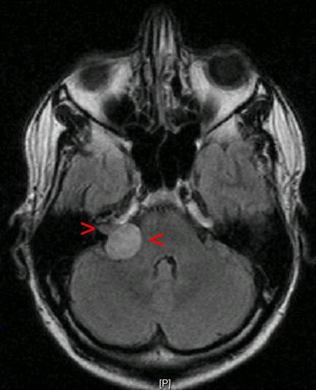 An acoustiic neuroma on the left side of this brain scan.
