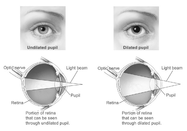 eye examination: portions of retina as seen through undilated pupil and dilated pupil
