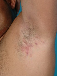 Hidradenitis suppurativa in the armpit