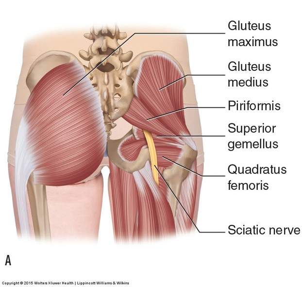Piriformis and sciataica nerve